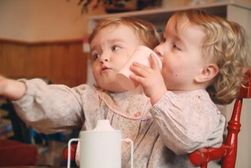 Po rozdzieleniu bliźniaczek syjamskich Eilish i Kate - jedna dziewczynka zmarła /YouTube