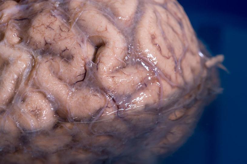 Po śmierci można oddać swój mózg do badań naukowych /123RF/PICSEL