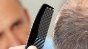Początki łysienia: Te objawy powinny cię zaniepokoić
