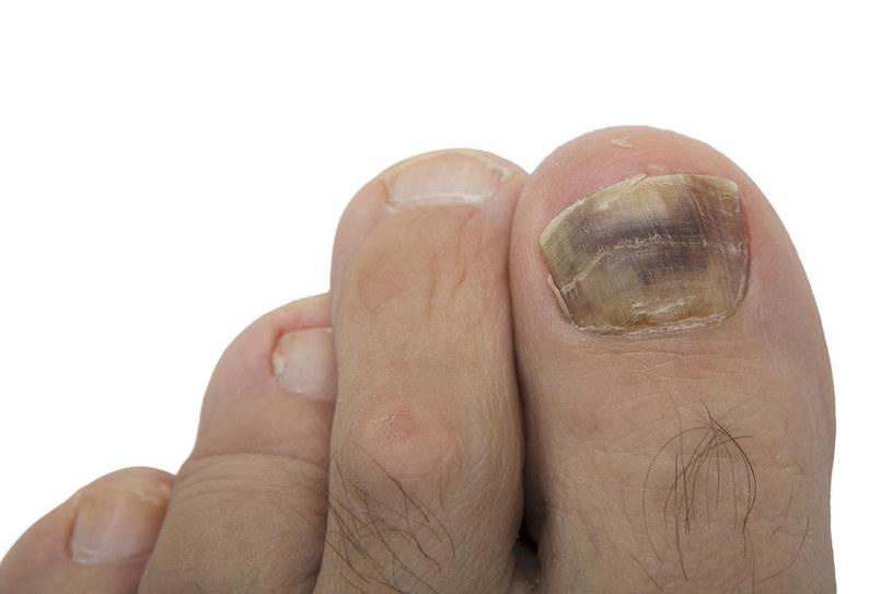 Podejrzane zmiany na paznokciach /©123RF/PICSEL