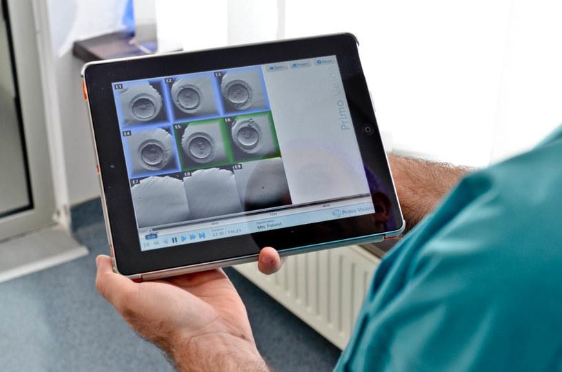 Podgląd metodą poklatkową zarodków na iPadzie /fot. Gyncetrum /materiały prasowe