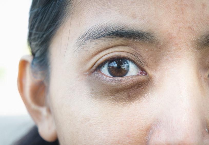 Podkrążone oczy a skóra /©123RF/PICSEL