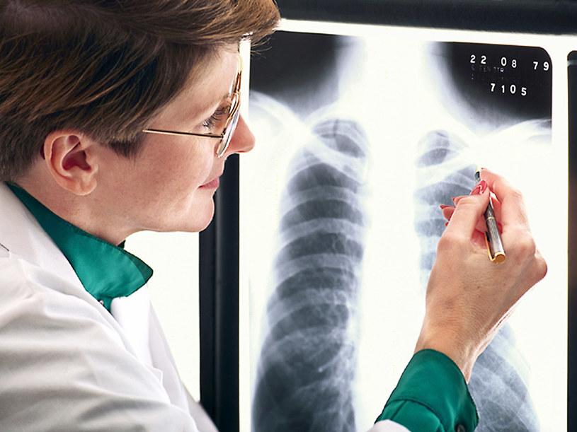 Podstawowym badaniem jest zdjęcie RTG klatki piersiowej  /© Bauer