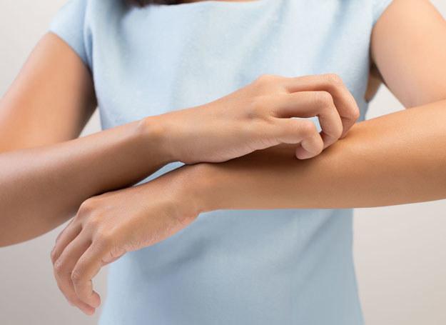 Pokrzywka często ma podłoże alergiczne i może ujawnić się (w każdym wieku) po zetknięciu z uczulającymi składnikami /123RF/PICSEL
