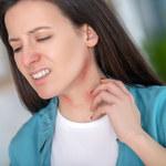 Pokrzywka: Objawy i przyczyny. Jakim chorobom towarzyszy i jak ją leczyć?