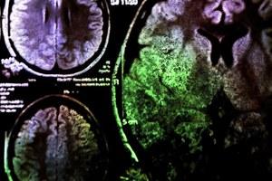 Polacy chcą leczyć chorobę Alzheimera przy użyciu laserów