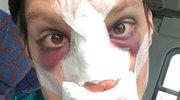 Polski aktor przeszedł operację plastyczną