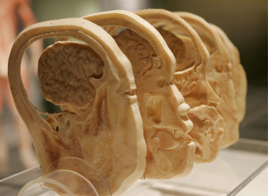 Polski naukowiec zidentyfikował tożsamość pacjenta, którego mózg w XIX w. pomógł w dokonaniu kroku milowego w badaniach neurologicznych /STEFAN ZAKLIN /PAP/EPA