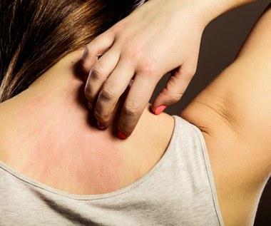 Popularne zakażenia skórne: jak sobie z nimi radzić?