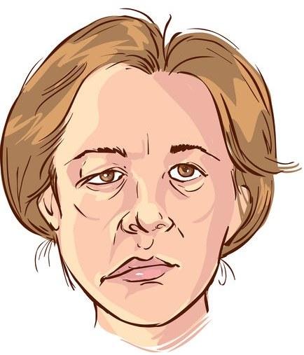 Porażenie nerwu twarzy /©123RF/PICSEL