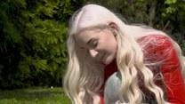 Porcelanowi ludzie. Jak żyje się z albinizmem?