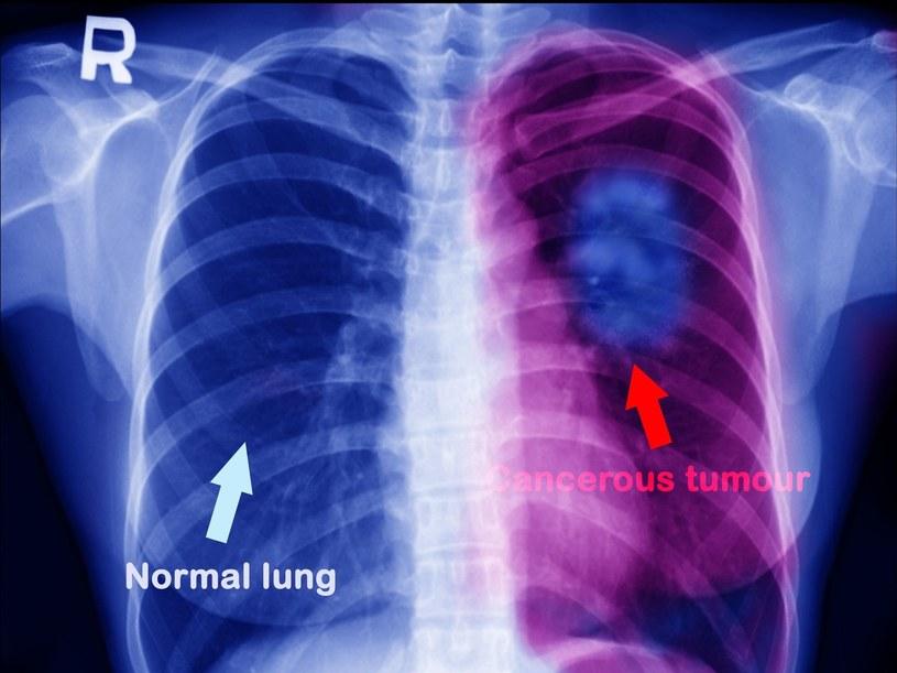 Porównanie płuca zdrowego z płucem zaatakowanym przez nowotwór /123RF/PICSEL