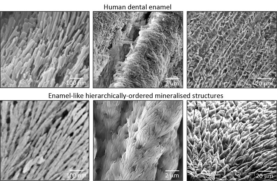 Porównanie struktury naturalnego ( u góry) i sztucznego szkliwa /Alvaro Mata /Materiały prasowe