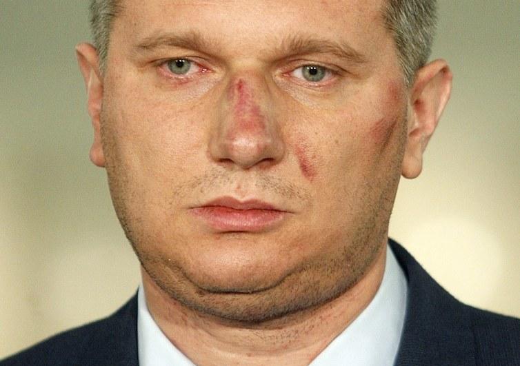 Poseł Przemysław Wipler po pobiciu /Adam Guz /Reporter