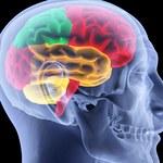 Posiadamy mniejsze mózgi od naszych przodków. Co to oznacza?