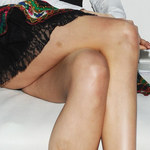 Posiniaczona modelka Donatana. Kto jej to zrobił?