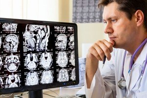 Postępy w leczeniu choroby Alzheimera