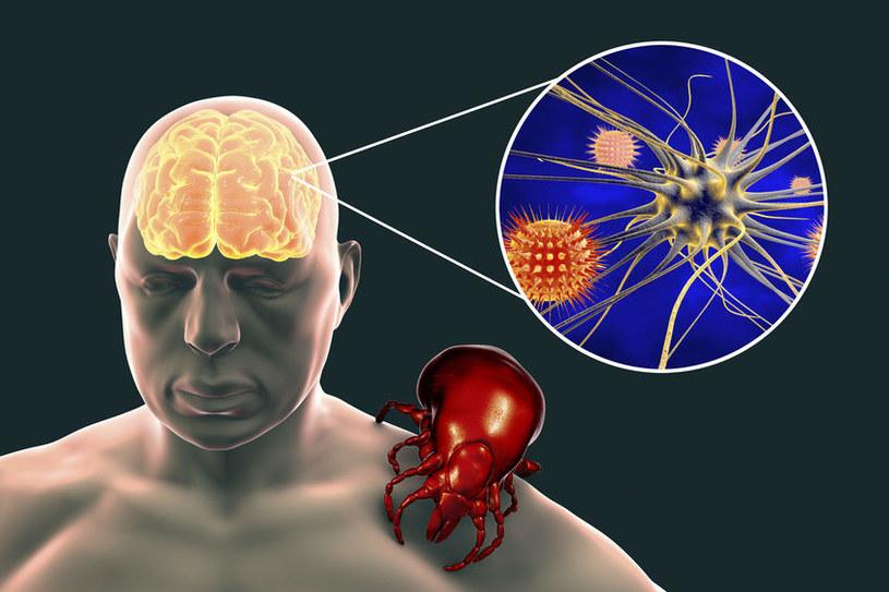 Powikłania neurologiczne /©123RF/PICSEL