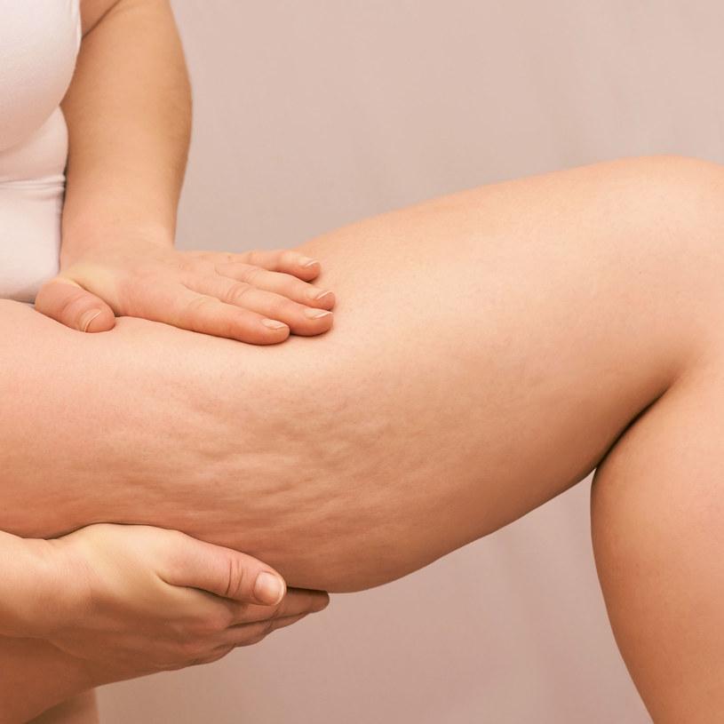 Powodem powstawania cellulitu są zaburzenia mikrokrążenia /123RF/PICSEL