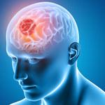 Powszechny pierwotniak zwiększa ryzyko wystąpienia glejaka u ludzi