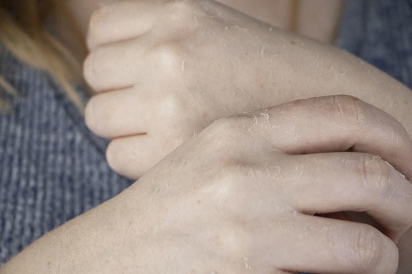 Poznaj przyczyny łuszczenia się skóry na dłoniach /©123RF/PICSEL