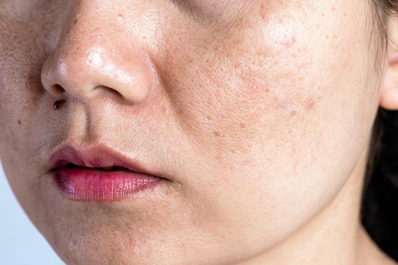 Poznaj sposoby na zmatowienie skóry twarzy /123RF/PICSEL