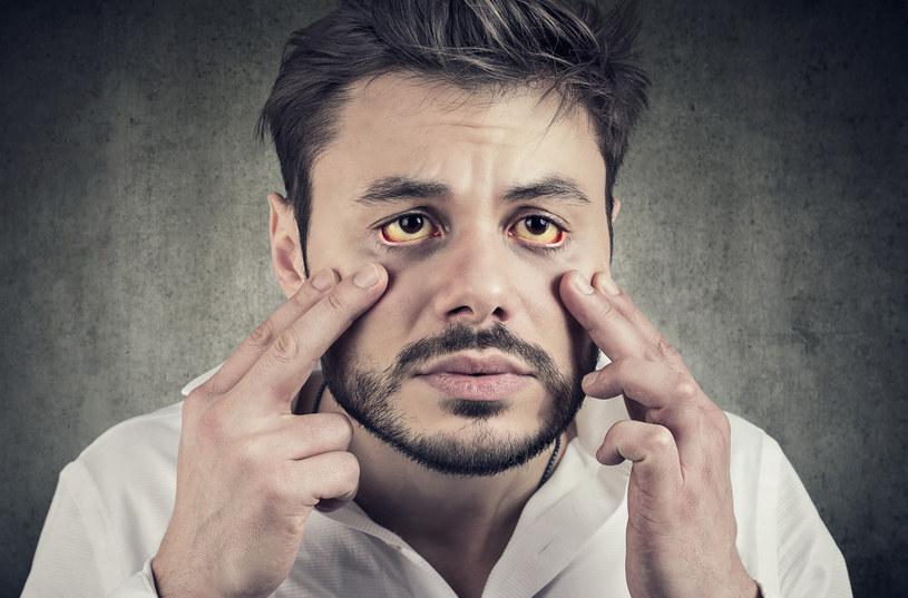 Pożółkłe białka oczu są prawie pewnym, ale nie jedynym objawem problemów z wątrobą /123RF/PICSEL