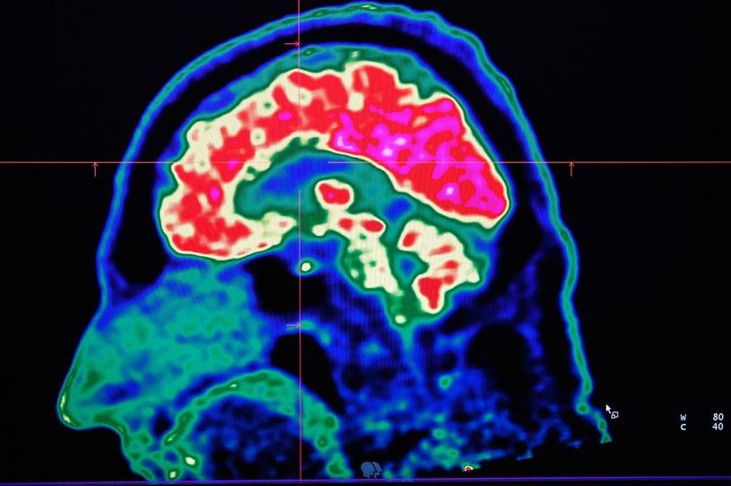 Pozytony wykorzystuje się do uzyskiwania takich obrazów mózgu jak ten - w badaniu pozytonowej tomografii emisyjnej (PET) /AFP