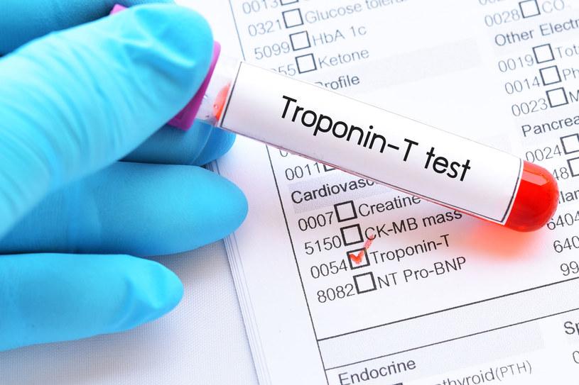 Prawidłowe stężenie troponin przyjmuje się za zerowe /123RF/PICSEL