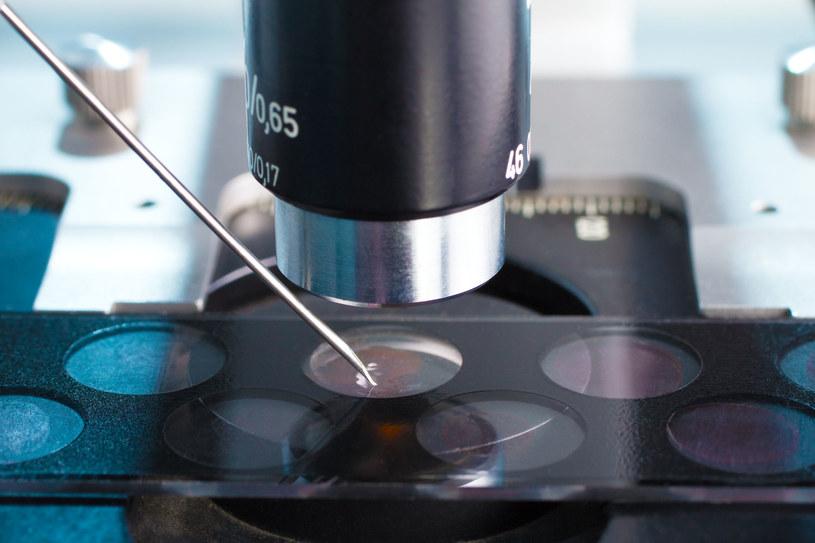 Próbka z biopsji poddawana badaniu /123RF/PICSEL