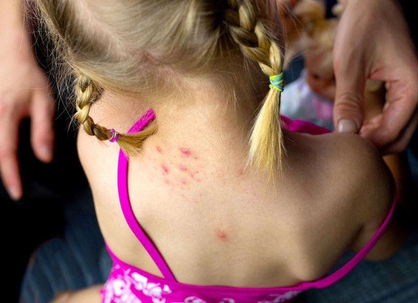 Problem alergii na pokarmy może w równym stopniu dotyczyć zarówno dzieci, jak i dorosłych /123RF/PICSEL