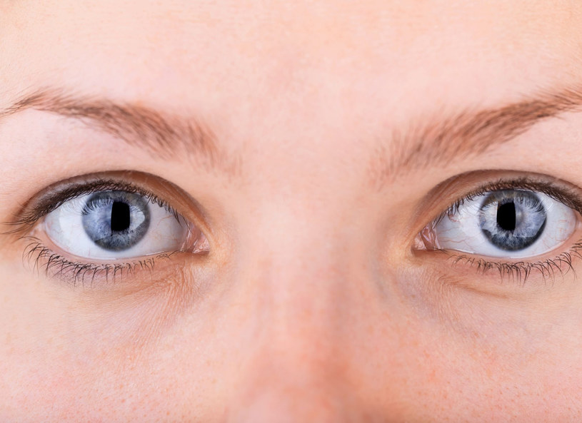 Problem opadających powiek dotyka coraz młodsze kobiety /123RF/PICSEL
