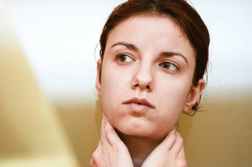 Problem opuchniętych okolic oczu dotyka wielu kobiet /123RF/PICSEL