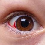 Problemy z oczami, których nie powinno się ignorować
