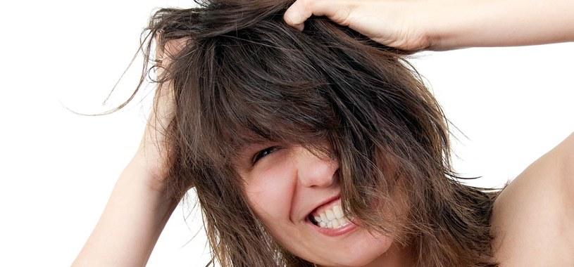 problemy z włosami /© Photogenica