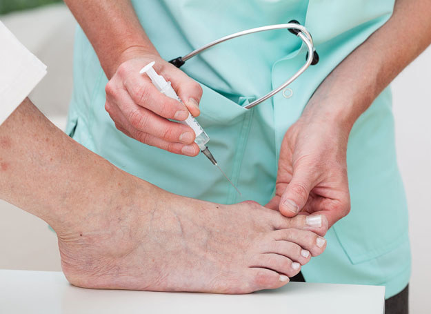 Problemy ze stopami wynikają m.in ze źle dobranego obuwia /123RF/PICSEL