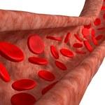 Produkty, które oczyszczą twoje naczynia krwionośne