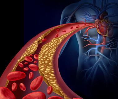 Produkty, które pomagają pozbyć się złogów w tętnicach