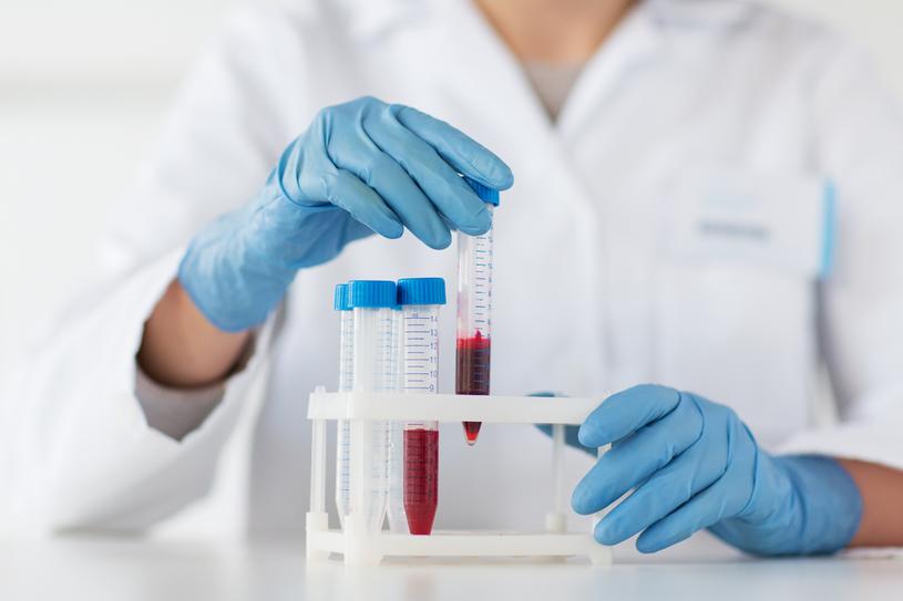 Profil lipidowy to badanie krwi, które oznacza stężenie cholesterolu, jego frakcji LDL i HDL oraz trójglicerydów /123RF/PICSEL