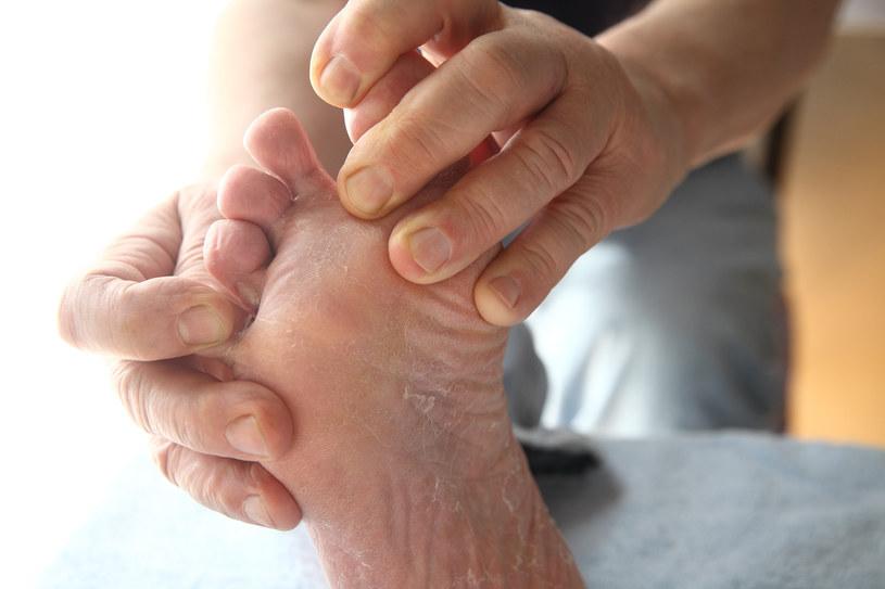 Profilaktyka stopy cukrzycowej to przede wszystkim dbanie o higienę stóp /123RF/PICSEL