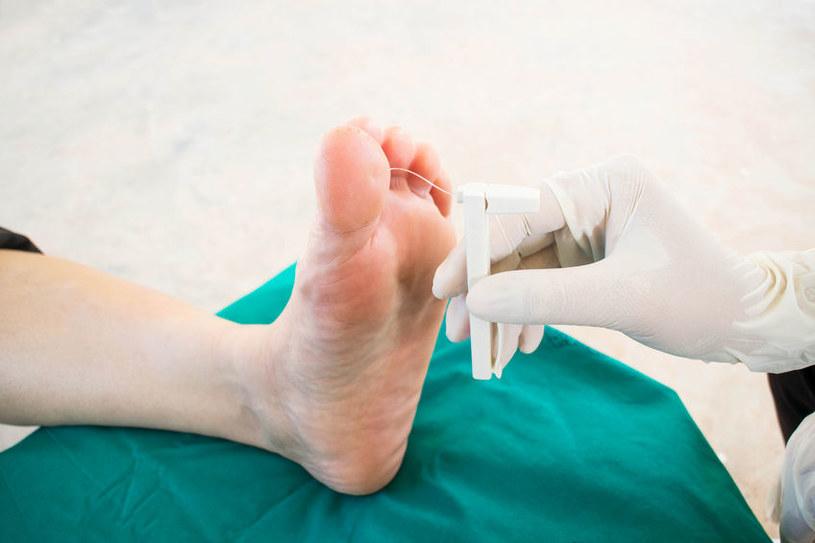 Profilaktyka stopy cukrzycowej /©123RF/PICSEL