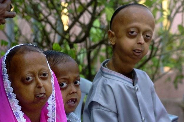 Progeria to bardzo rzadka choroba polegająca na przedwczesnym starzeniu się organizmu /AFP