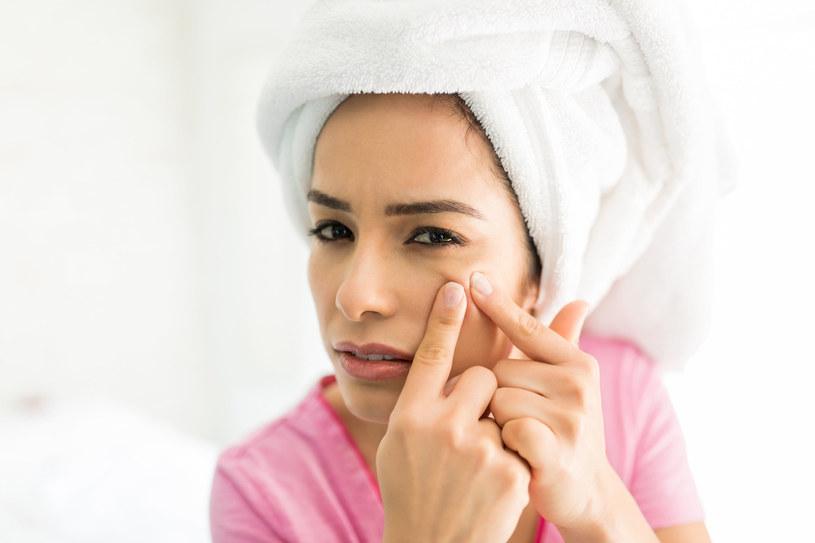 Prosaki najlepiej usuwać w gabinecie kosmetycznym, nie samodzielnie! /123RF/PICSEL