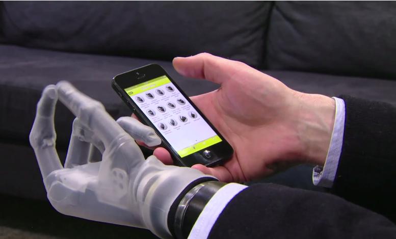 Proteza sterowana smartfonem.  Fot. Touch Bionics /materiały prasowe