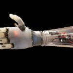Protezy kończyn zrodzone z druku 3D