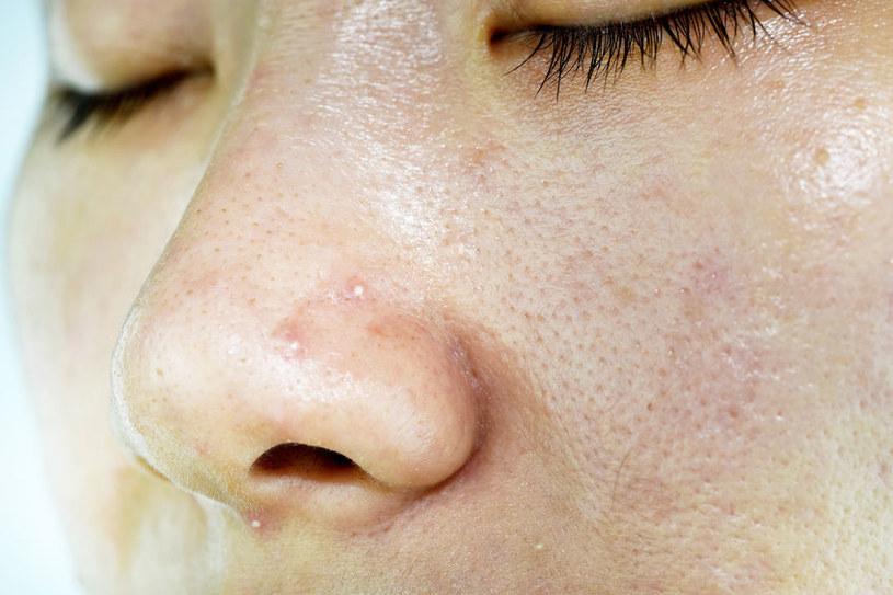 Pryszcze na twarzy /©123RF/PICSEL