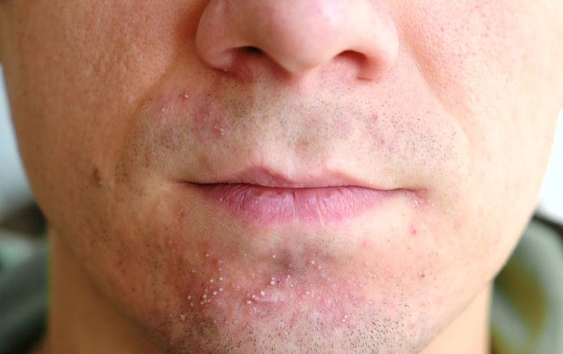 Pryszcze w okolicy ust /©123RF/PICSEL