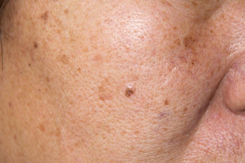Przebarwienia często powstają na twarzy /123RF/PICSEL