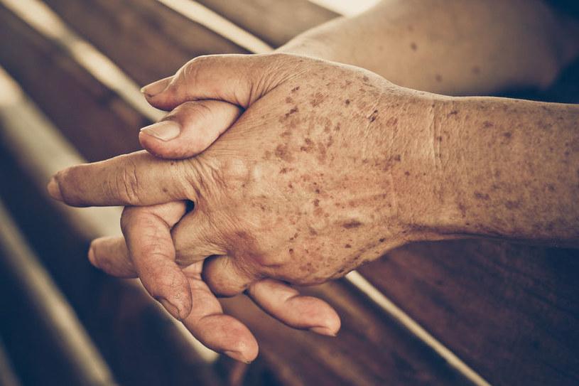 Przebarwienia na dłoniach /©123RF/PICSEL