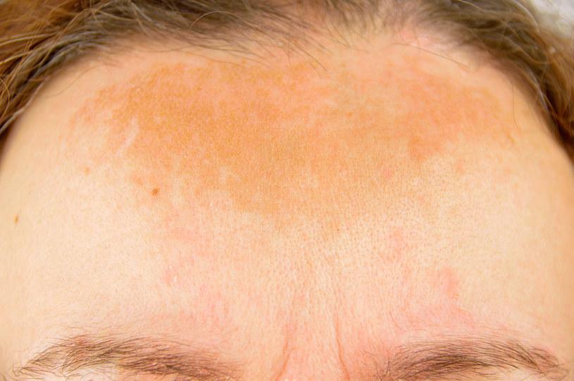 Przebarwienia na twarzy /©123RF/PICSEL